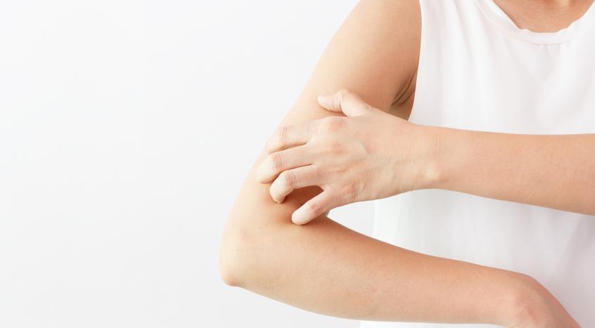 Czy są skuteczne suplementy na atopowe zapalenie skóry?